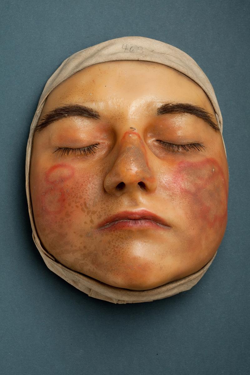 """Moulage """"Lupus erythematodes an Nase und Wangen eines jungen Mädchens"""", um 1910"""